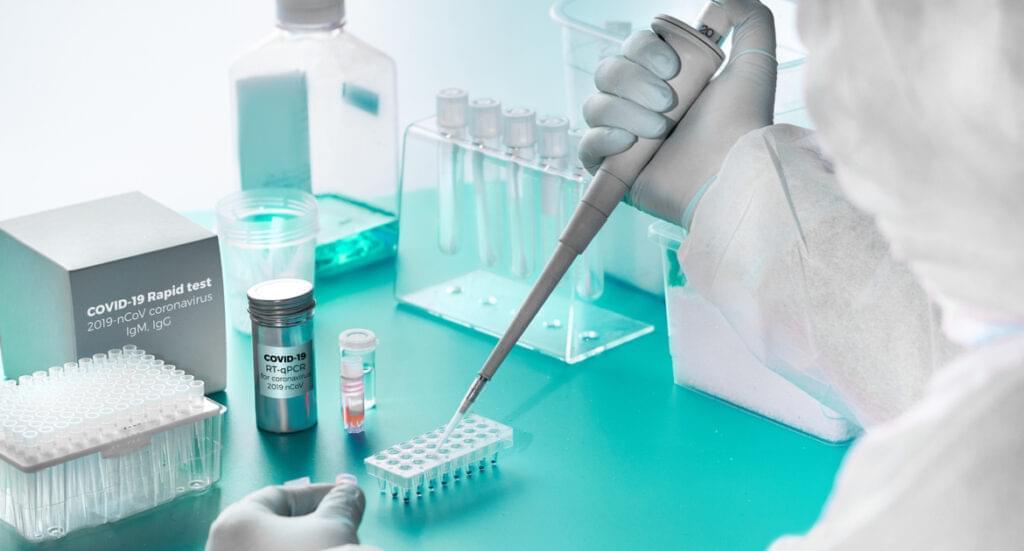 Выявление иммуноглобулинов класса G/M методом ИФА