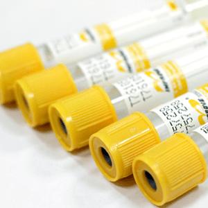 вакуумные пробирки желтые